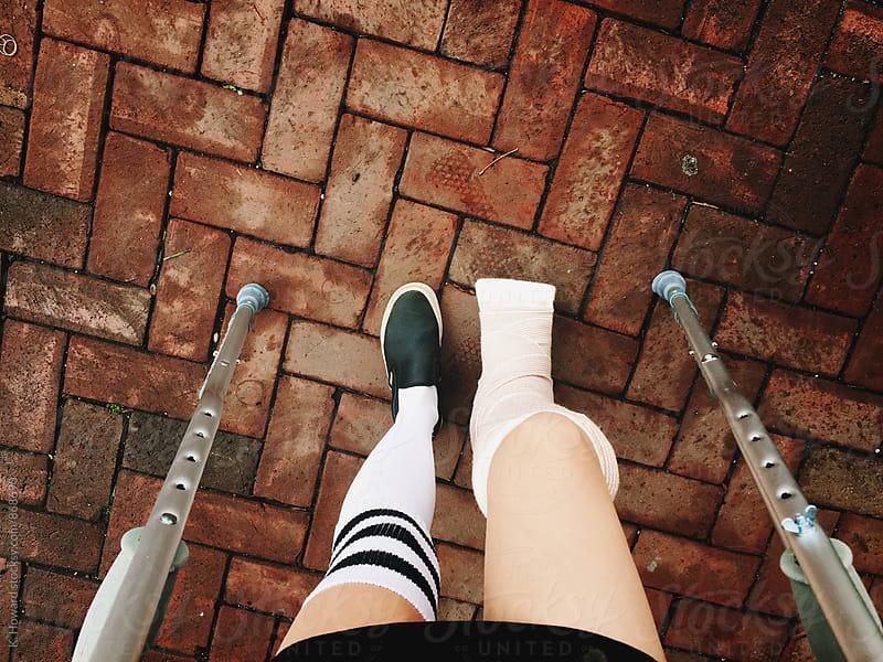Bum Leg. by K. Howard for Stocksy United