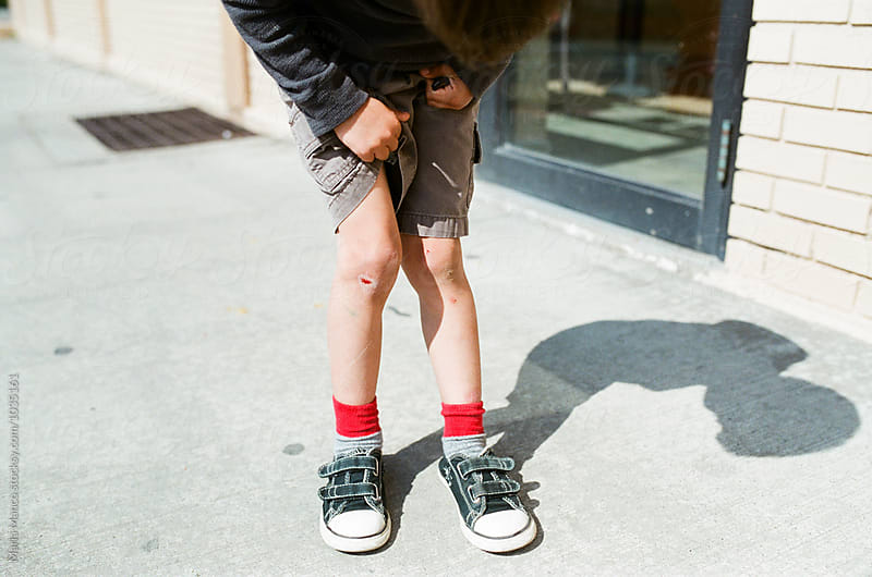 boy looks at scraped knees by Maria Manco for Stocksy United