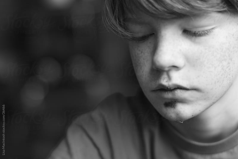 sad looking boy with freckles and scape on chin by Lisa MacIntosh for Stocksy United