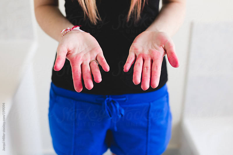 Girl with pink hair dye on her hands  by Jacqui Miller for Stocksy United