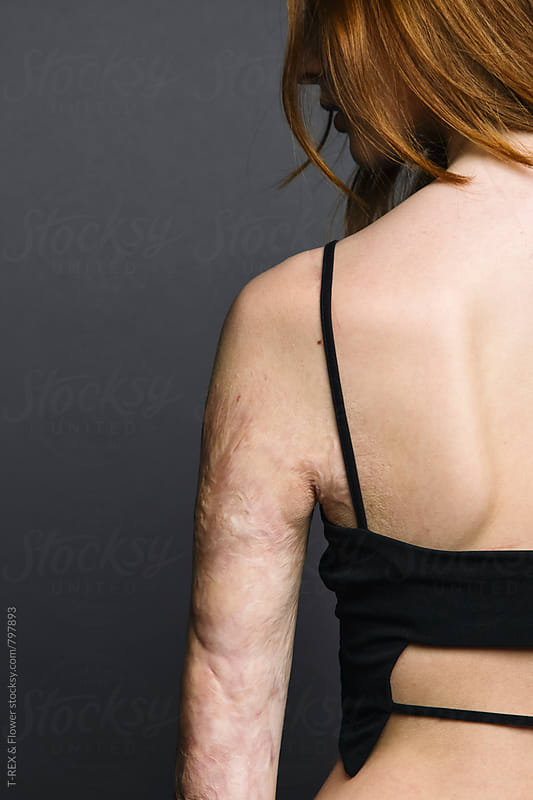Close-up of redheaded woman with burnt arm. Back view by Danil Nevsky for Stocksy United