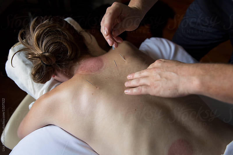 Alternative medicine acupuncture on female patient