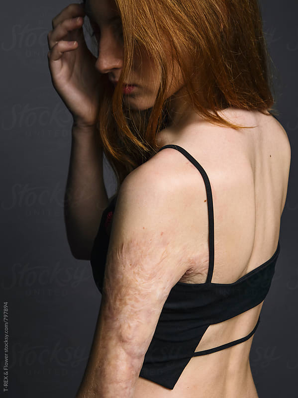 Close-up of redheaded woman with damaged skin by Danil Nevsky for Stocksy United