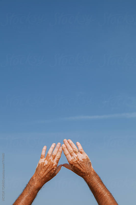 Hands with Vitiligo Skin Disease by Victor Torres for Stocksy United
