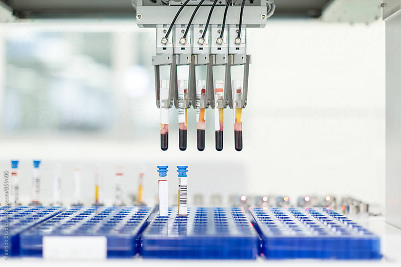 Close up of pipette tips in hospital laboratory  by MaaHoo Studio for Stocksy United