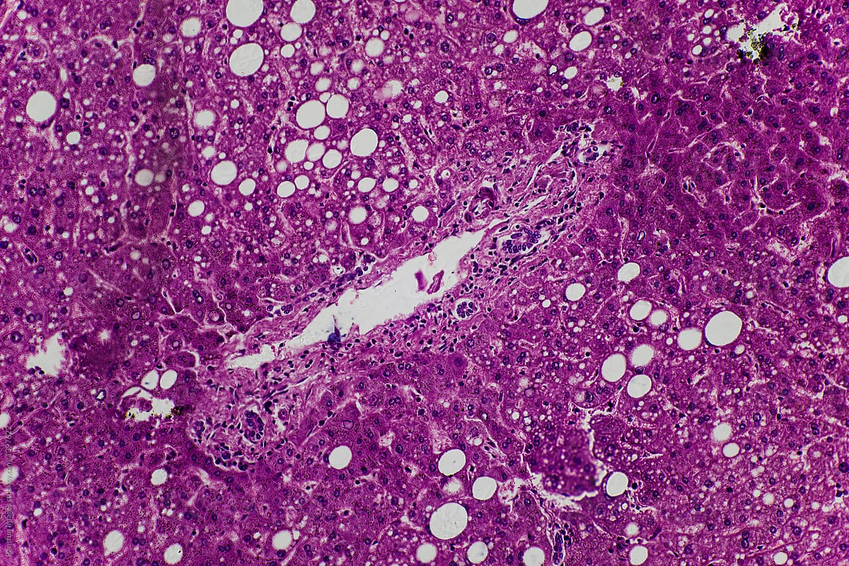 Human Liver Tissue Showing Fatty Degeneration Stocksy United