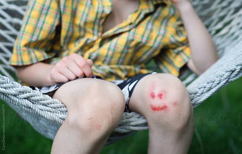 Little boy's skinned knee is smiling by Cara Dolan for Stocksy United
