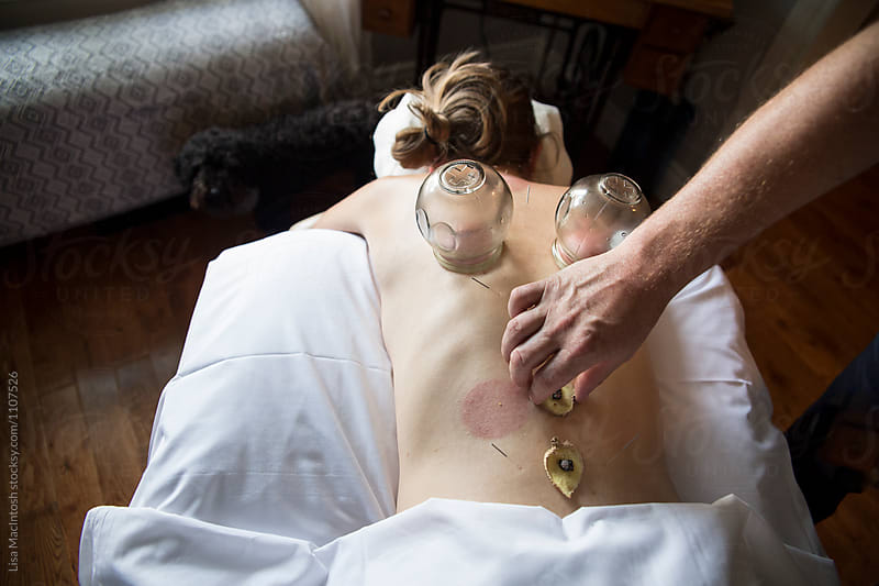 Acupuncture and glass cupping therapy on female patient