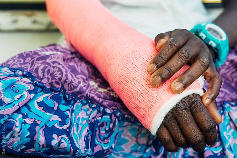 Pink cast on a black girl's broken arm by Gabriel (Gabi) Bucataru for Stocksy United