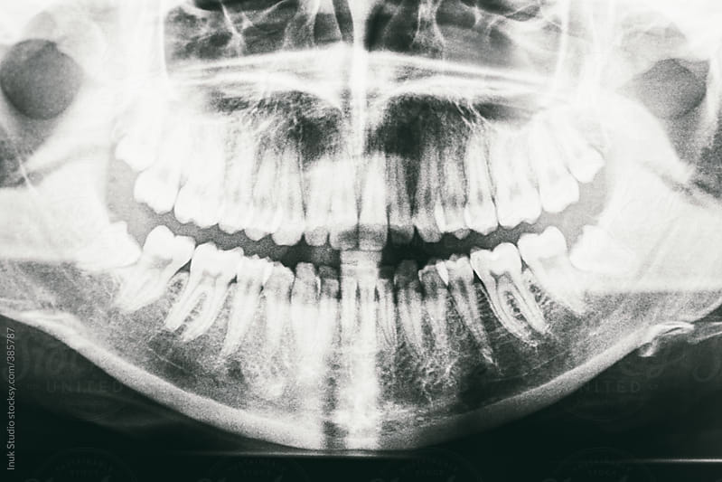 Dental X-Rays of a human jaw by Inuk Studio for Stocksy United