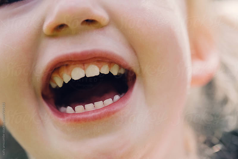 Close up of little girls smile by sally anscombe for Stocksy United