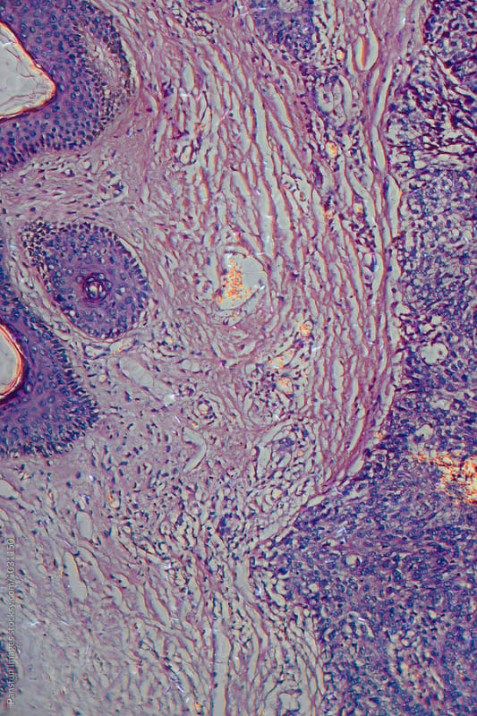 human cancer cells of meibomian gland tissue tumour by Pansfun Images for Stocksy United