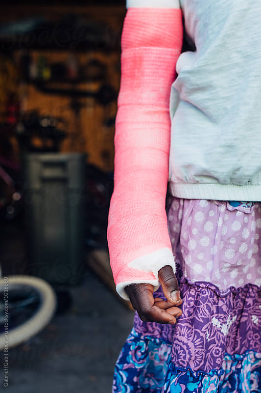 Pink cast on a black girl's broken arm by Gabriel (Gabi) Bucataru for Stocksy United