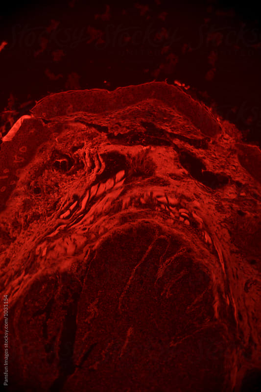 human cancer cells of meibomian gland tissue tumour by Xunbin Pan for Stocksy United