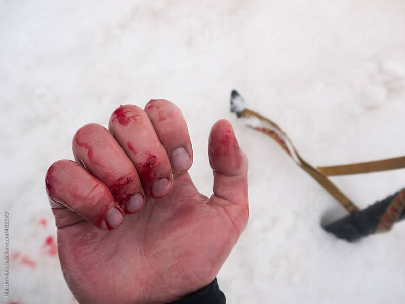 Bloody hand with scratched skin with snow in the background by Martin Matej for Stocksy United