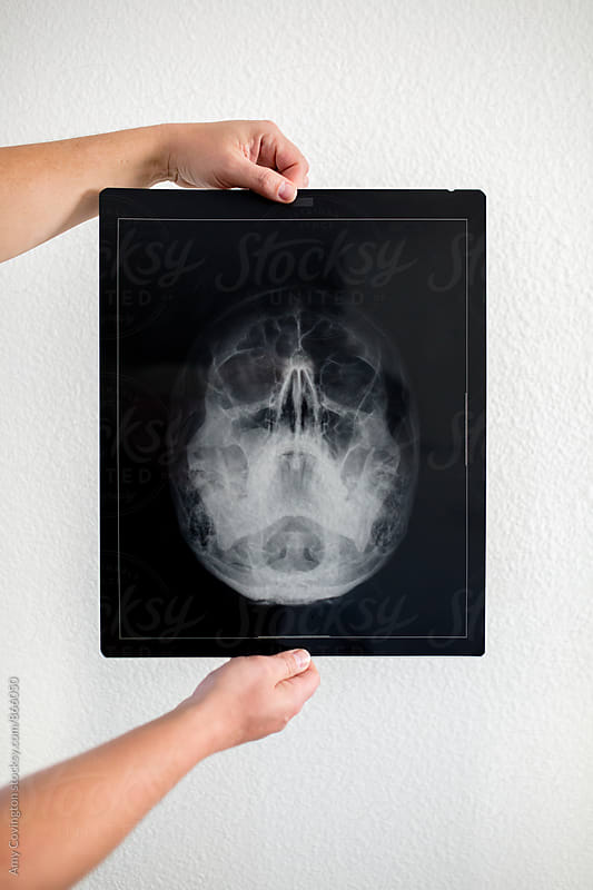 Man holding a x-ray of his skull by Amy Covington for Stocksy United