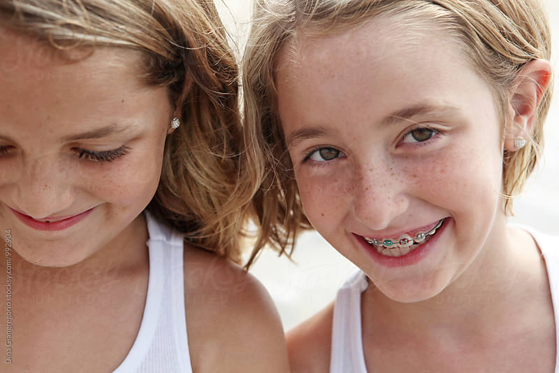 Twin Sisters At The Beach, One With Braces by Dina Giangregorio for Stocksy United