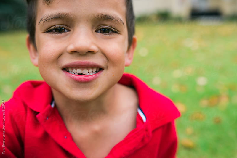 close up of a boy smiling with missing front teeth by Tara Romasanta for Stocksy United