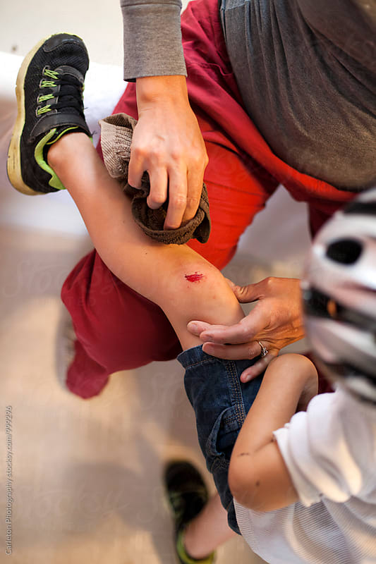 Mom cleaning her son's scraped knee by Carleton Photography for Stocksy United