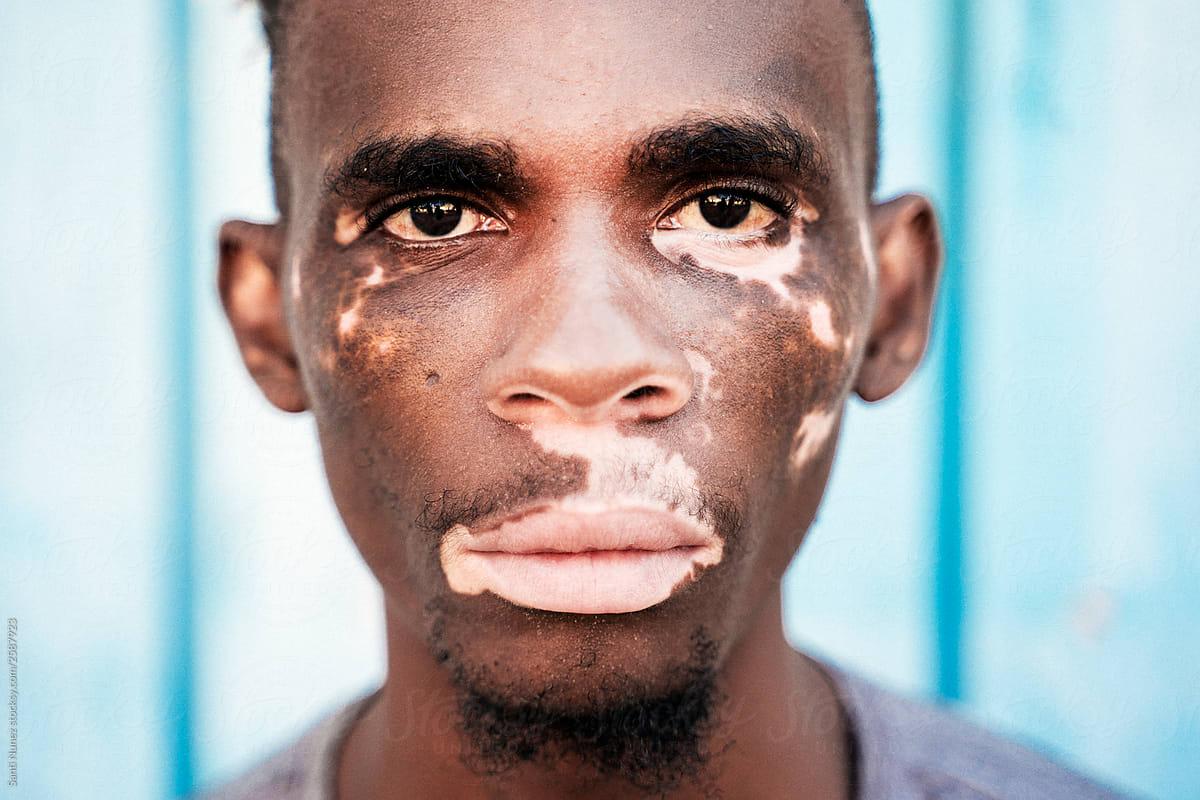Portrait Of A Brown Skin Man With Vitiligo By Santi Nunez Stocksy United