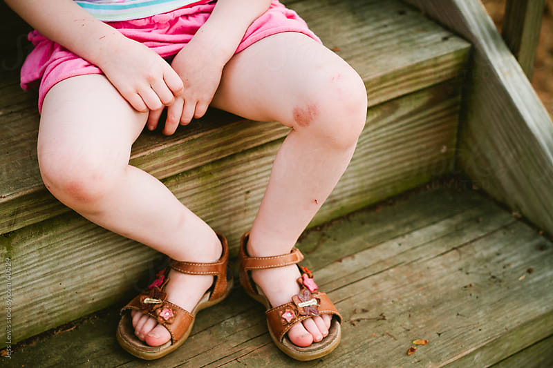 young girl with skinned knees sitting on steps by Jess Lewis for Stocksy United