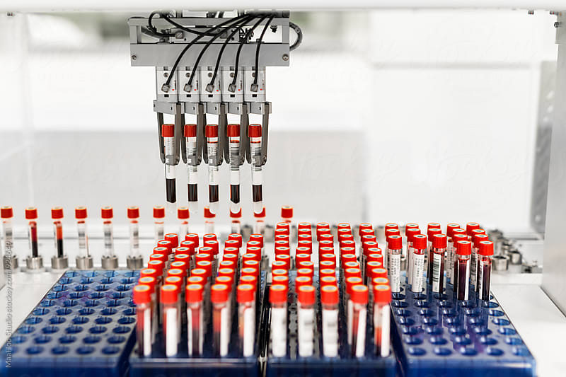 A row of human blood and chemistry samples awaiting testing in the lab by Maa Hoo for Stocksy United