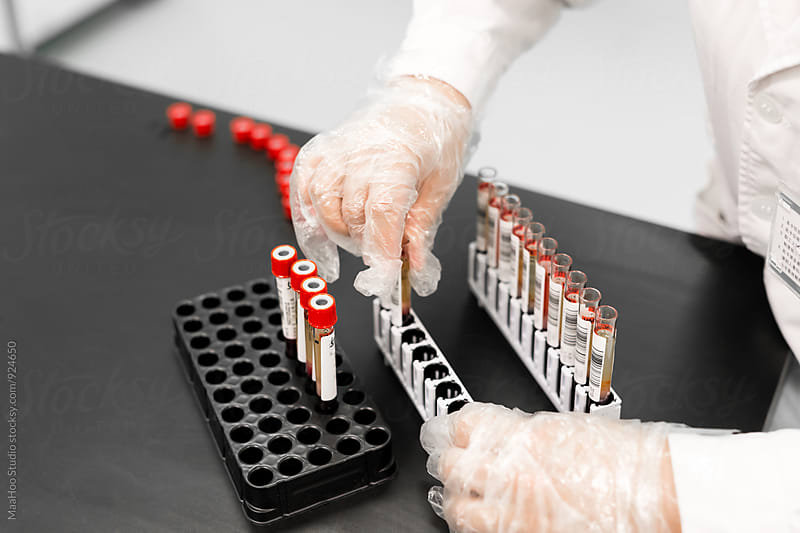 Female doctor working on the samples of blood for testing by MaaHoo Studio for Stocksy United