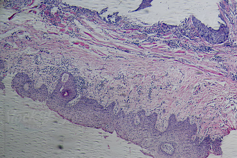 human cells of meibomian gland tumour by Pansfun Images for Stocksy United