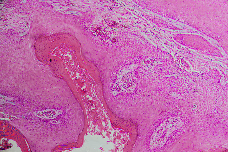human cells, well differentiated squamous cell carcinomas by Pansfun Images for Stocksy United