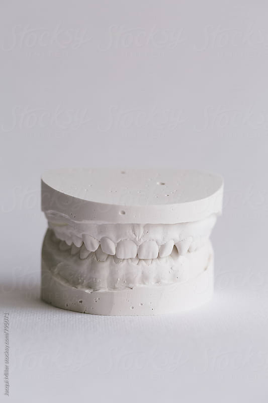 Plaster models of upper and lower teeth  by Jacqui Miller for Stocksy United