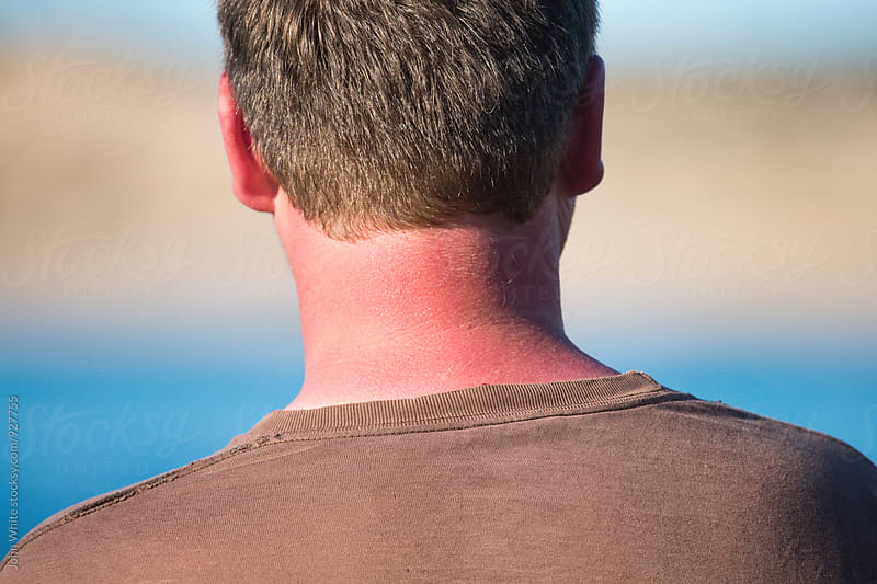 Sunburnt neck at the seaside.  by John White for Stocksy United