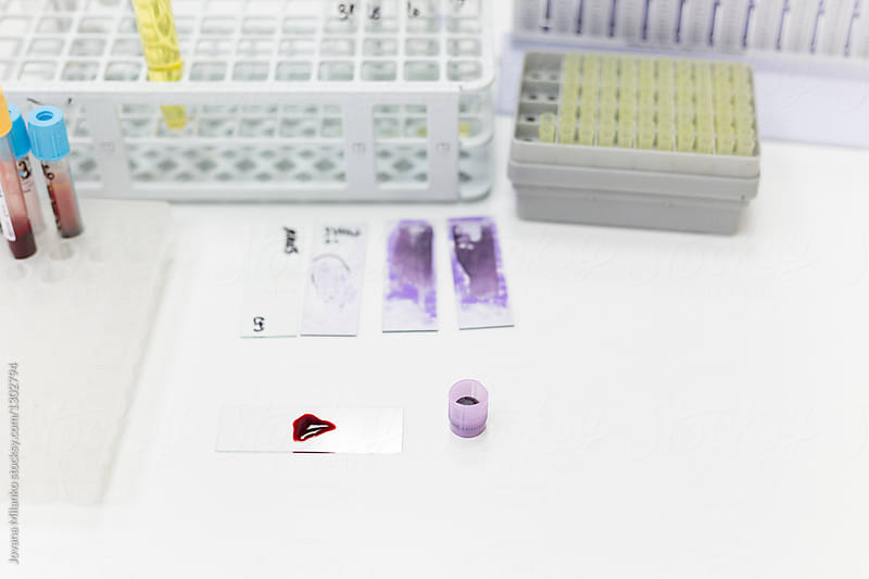 Blood samples being tested in a lab