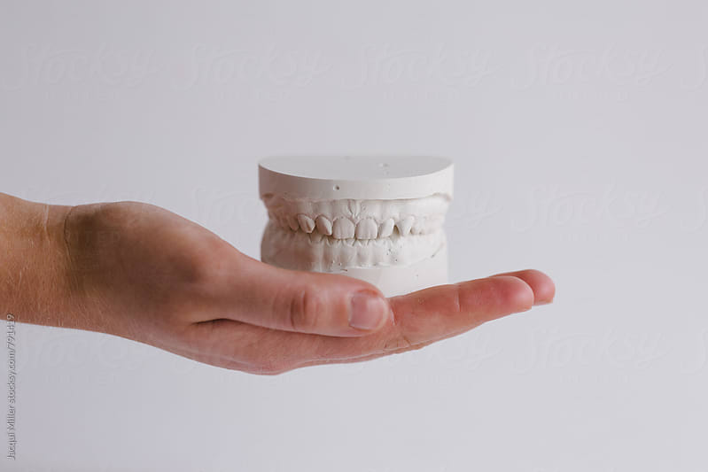 Hand holding plaster models of upper and lower teeth by Jacqui Miller for Stocksy United