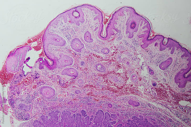 basal cell carcinoma of human by Xunbin Pan for Stocksy United