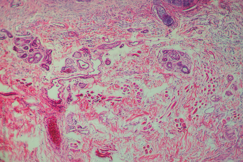 human cells, basal cell cancer of eyes by Pansfun Images for Stocksy United