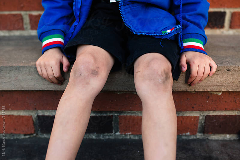 Child with dirt on knees by Maria Manco for Stocksy United